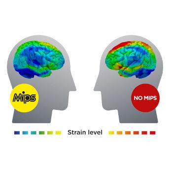 Strain in the brain